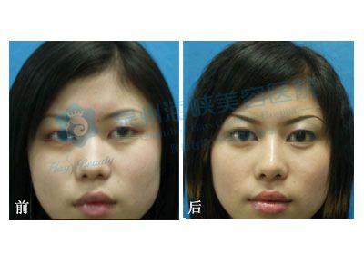 鼻头组织结构图