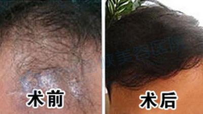 如何治疗毛囊炎?